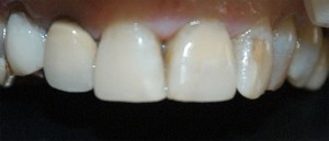 Cosmetic Dental Bonding - After