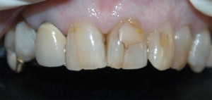 Cosmetic Dental Bonding - Before