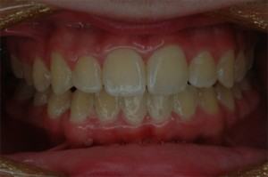 Orthodontics for Teenager - After