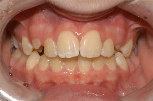 Orthodontics for Teenager - Before