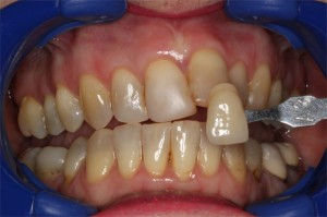 Whitening 2 - Before