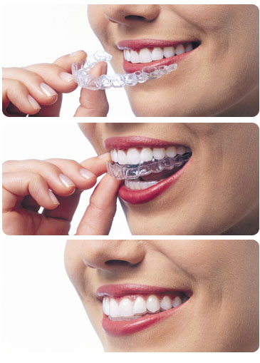 how to take invisalign photos