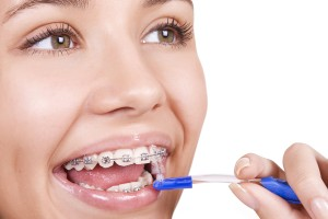You woman cleaning her dental braces