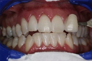 whitening-after1-300x199