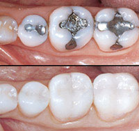 fillings - AmalgamVs Composite