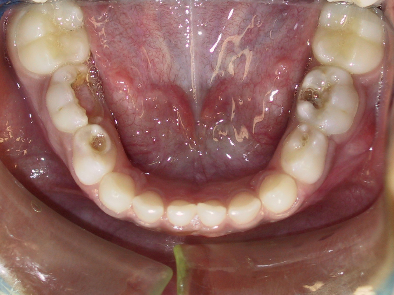 Pin small teeth with cavities on pinterest