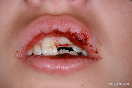 Tooth Damage From Car Accident