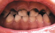 baby teeth cavities