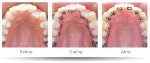 pic_dental-lingual-braces02